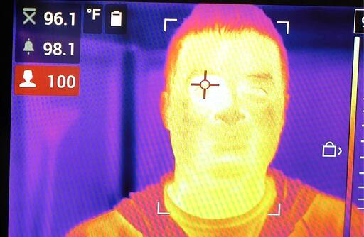 body-temperature-screen
